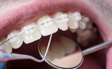 Cosmetic Dentistry Orthodontics For any Confident Smile