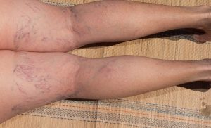 What are Varicose Veins and Spider Veins?